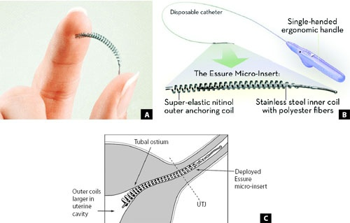 Essure Permanent Birth Control device