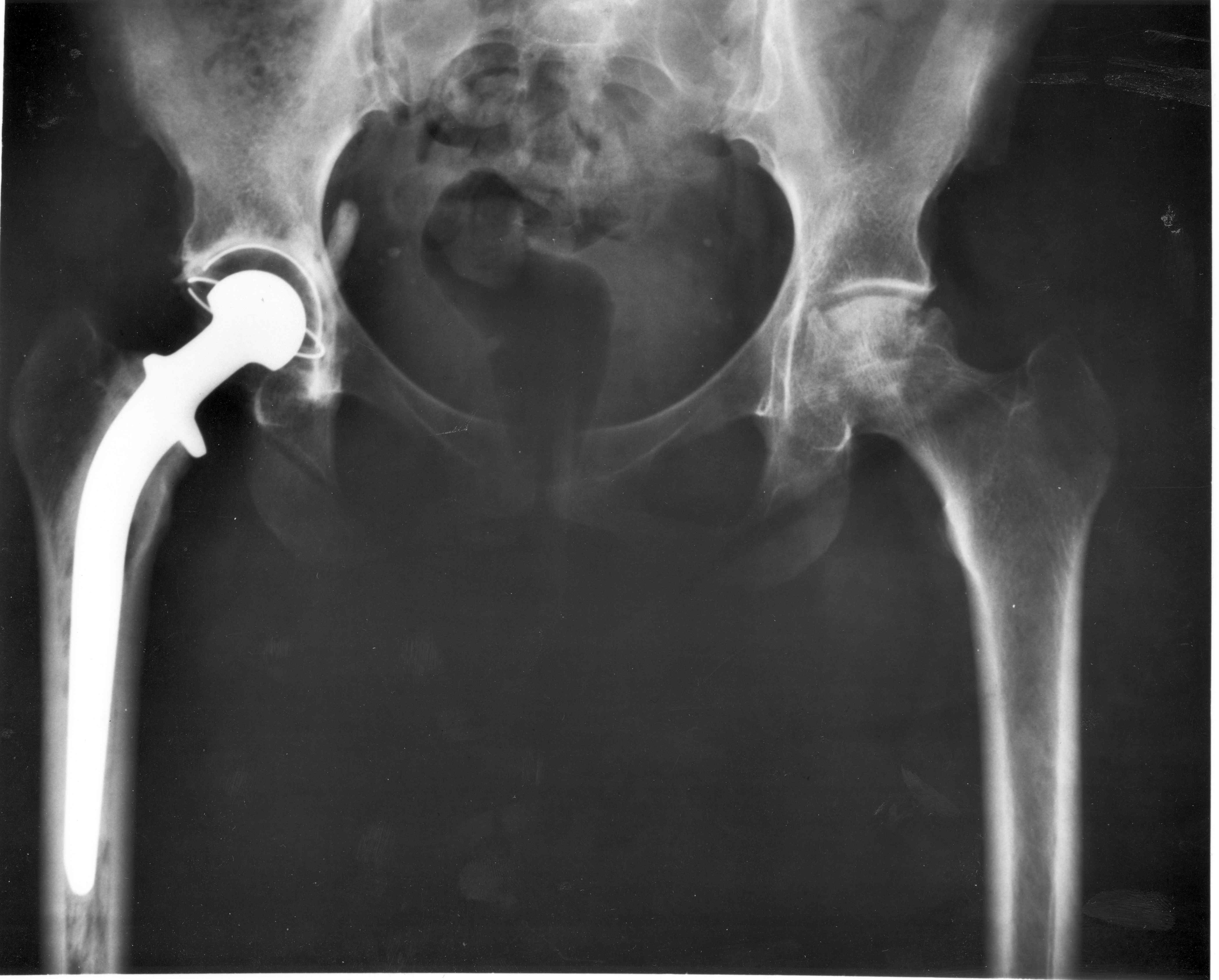 metal hip replacement x ray