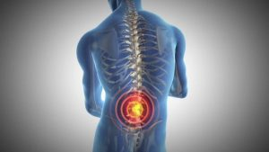 back pain in spine